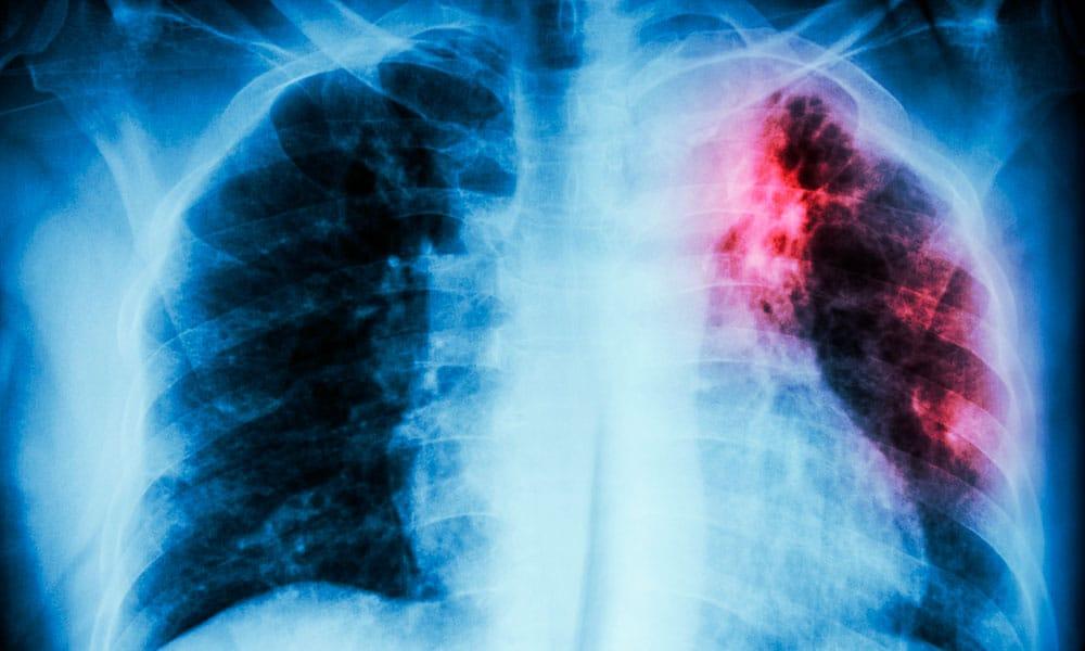 ¿Qué es la tuberculosis y cómo se trata?