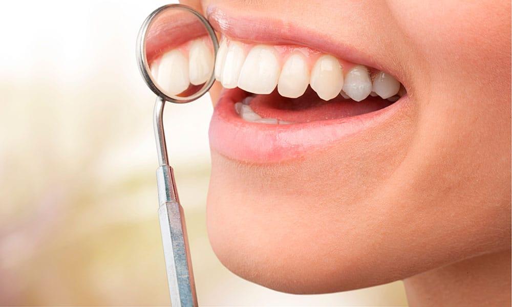 Injerto de encía, sujeción natural para los dientes